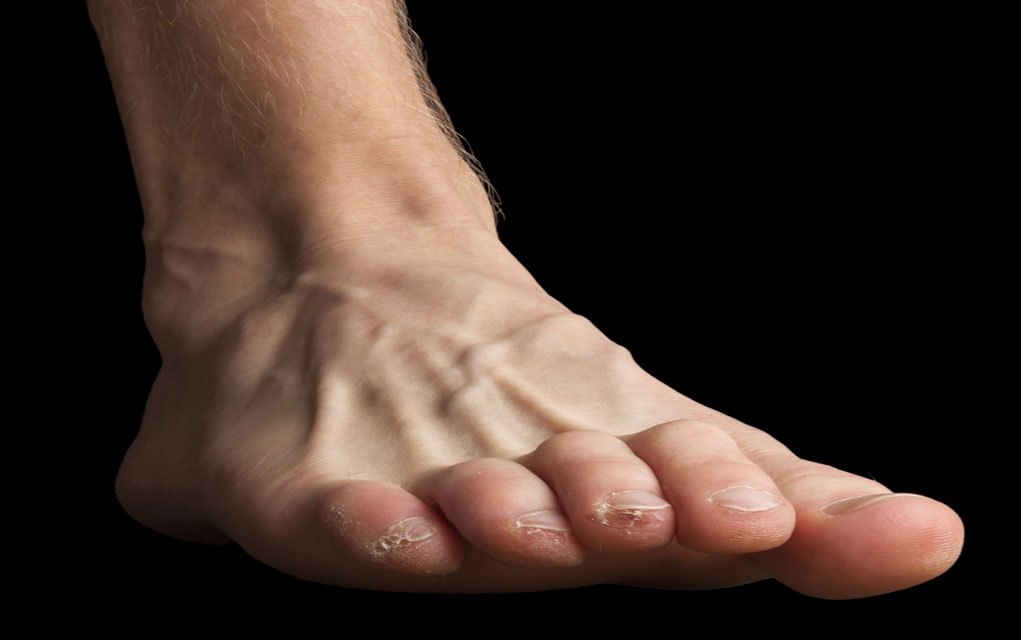 How to preventing blisters while hiking