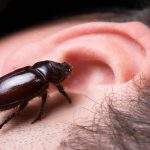 How to Remove a Bug from Your Ear