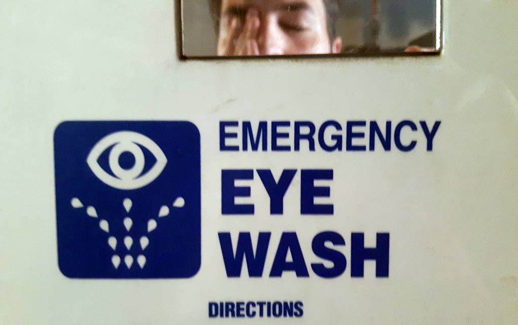 What-You-Should-Do-When-Dangerous-Chemicals-Splash-in-Your-Eye